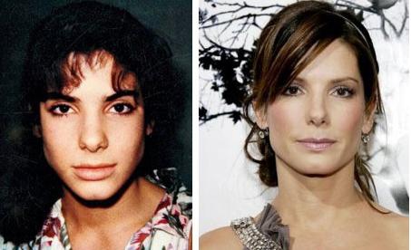 Sandra Bullock, actriz, cirugía, nariz