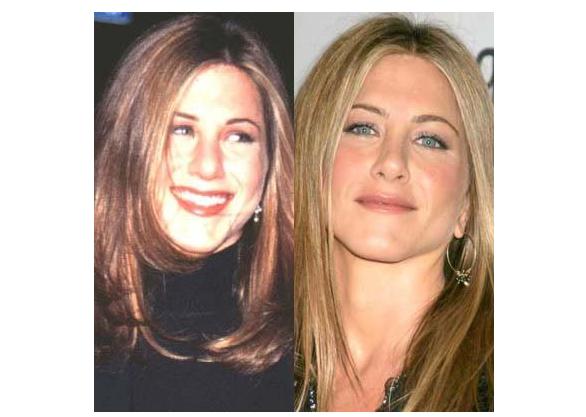 Jennifer Aniston, actriz, operación, nariz